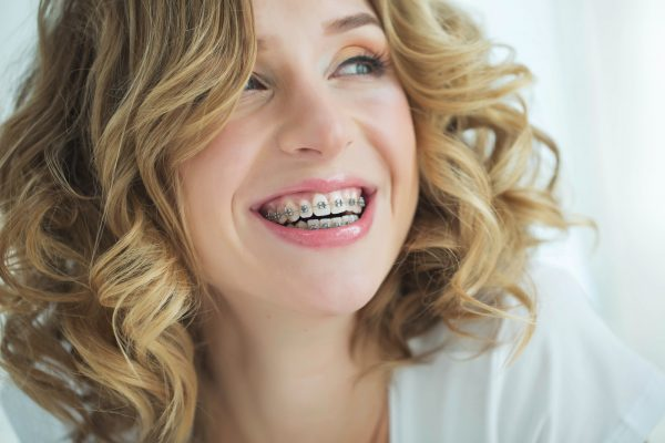 It's Never Too Late: Your Complete Guide to Adult Braces
