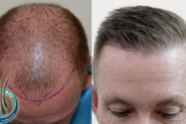 saw palmetto hair loss