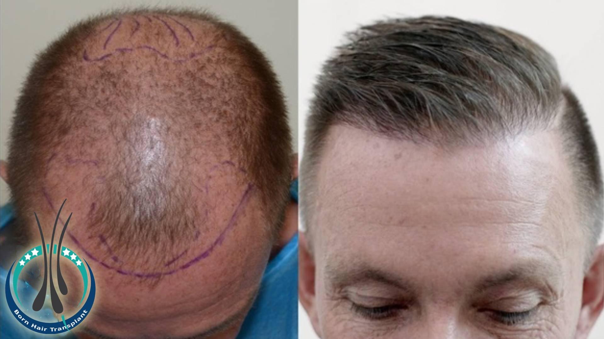 saw palmetto hair loss
