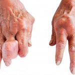 What is the main cause of gout and symptoms