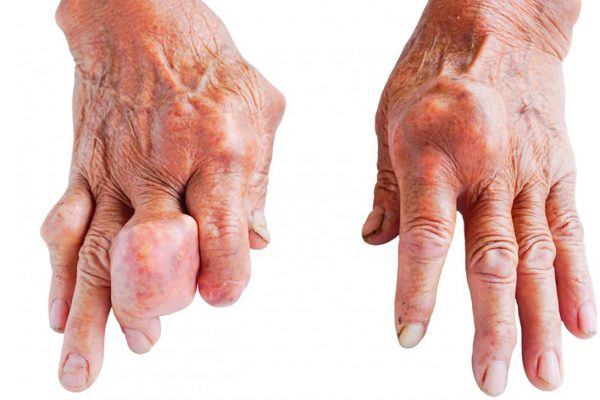 what is the main cause of gout