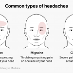 Different Types of Headaches - Causes, and Treatments