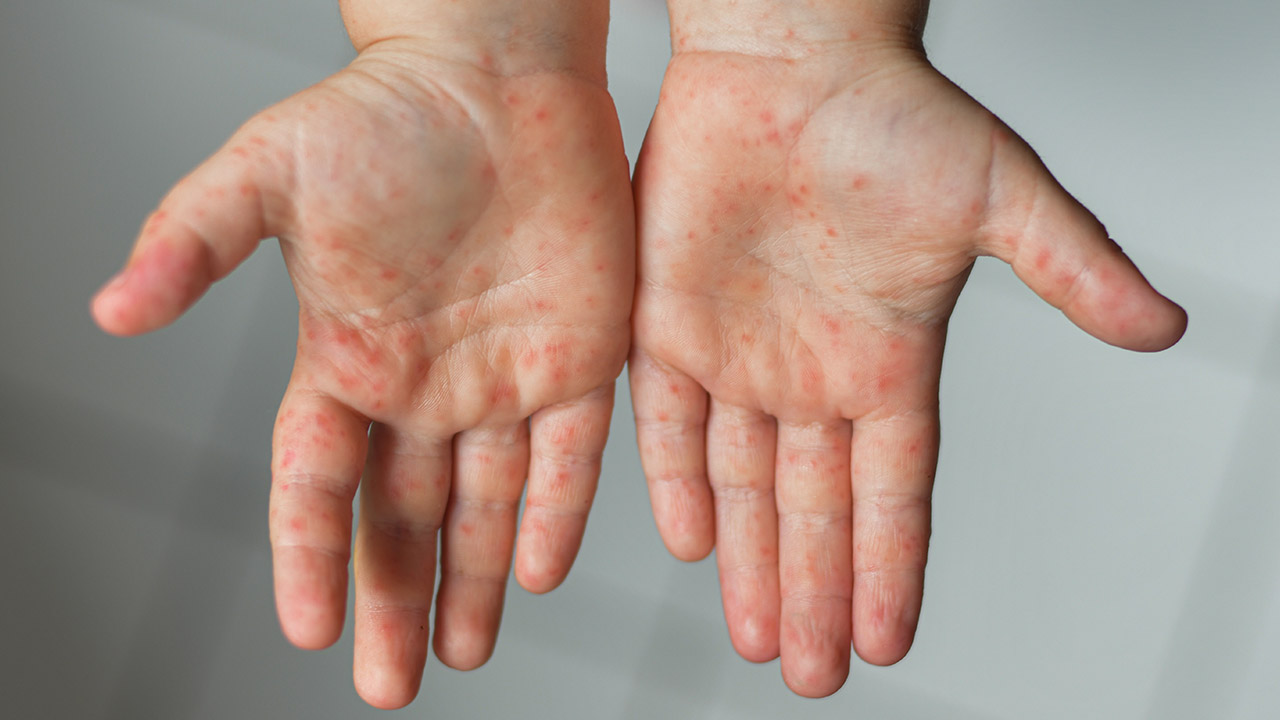 hand foot and mouth rash